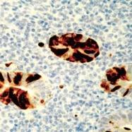 NB120-3648 - Adenovirus