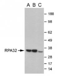 NB100-347 - RPA2