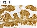 NB100-74424 - GHRH receptor
