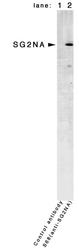 NB110-74572 - Striatin-3 / SG2NA
