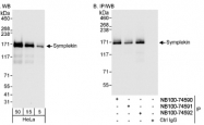 NB100-74592 - Symplekin / SYMPK