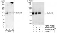 NB100-74608 - CAF-1 subunit A
