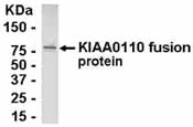 NB100-75506 - MAD2L1-binding protein