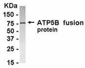 NB100-75604 - ATP synthase subunit beta