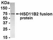 NB100-75626 - 11-beta HSD2 / HSD11B2