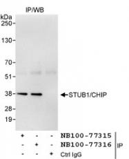 NB100-77316 - STUB1 / CHIP