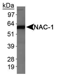 NB110-77345 - NACC1 / BTBD14B
