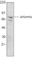 NB100-78405 - Artemis