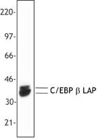 NB100-78448 - CEBPB