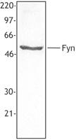 NB100-78453 - FYN
