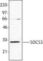 NB100-78454 - SOCS3 / CIS3