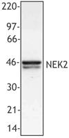 NB100-78492 - NEK2