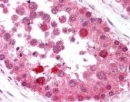 NB100-78535 - B-Raf proto-oncogene