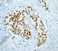 NB100-80036 - Progesterone receptor