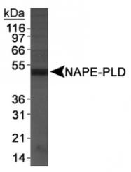 NB110-80070 - NAPE-PLD