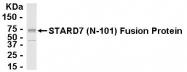 NB110-81557 - STARD7