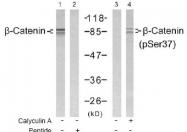 NB100-81820 - Catenin beta-1