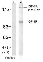 NB100-81979 - CD221 / IGF1R