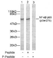 NB100-82086 - RELA / NF-kB p65
