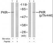 NB100-82156 - EIF2AK2 / PKR