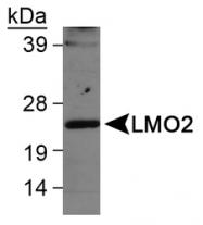 NB110-83978 - Rhombotin-2