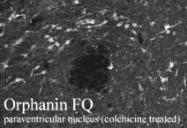 NB100-1659 - Nociceptin