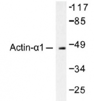NB100-91648 - alpha skeletal muscle Actin / ACTA1