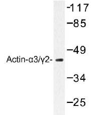NB100-91649 - gamma 2 smooth muscle Actin / ACTG2