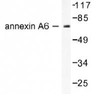 NB100-91659 - Annexin A6 / ANXA6