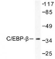 NB100-91681 - CEBPB