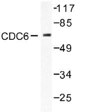 NB100-91692 - CDC6