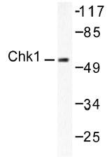 NB100-91695 - CHK1
