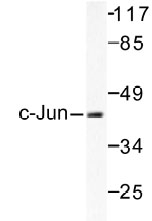 NB100-91704 - AP-1 / c-Jun