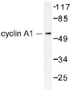 NB100-91727 - Cyclin A1