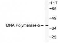 NB100-91734 - DNA polymerase beta