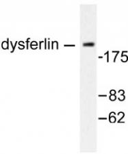 NB100-91737 - Dysferlin