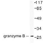 NB100-91792 - Granzyme B (GZMB)