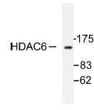 NB100-91805 - HDAC6