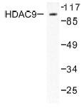 NB100-91808 - HDAC9