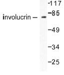 NB100-91829 - Involucrin / IVL