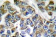 NB100-91840 - Cytokeratin 14