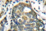 NB100-91850 - Cytokeratin 8