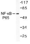 NB100-91893 - RELA / NF-kB p65
