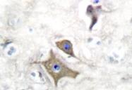NB100-91898 - Neuron specific enolase