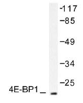 NB100-92010 - EIF4EBP1 / 4E-BP1