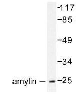 NB100-92015 - Amylin / IAPP