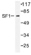 NB100-92224 - Splicing factor 1 (SF1)
