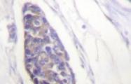 NB100-92249 - alpha Tubulin / TUBA1A / TUBA3