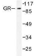 NB100-92252 - Glucocorticoid receptor