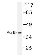 NB100-92254 - Aurora kinase B